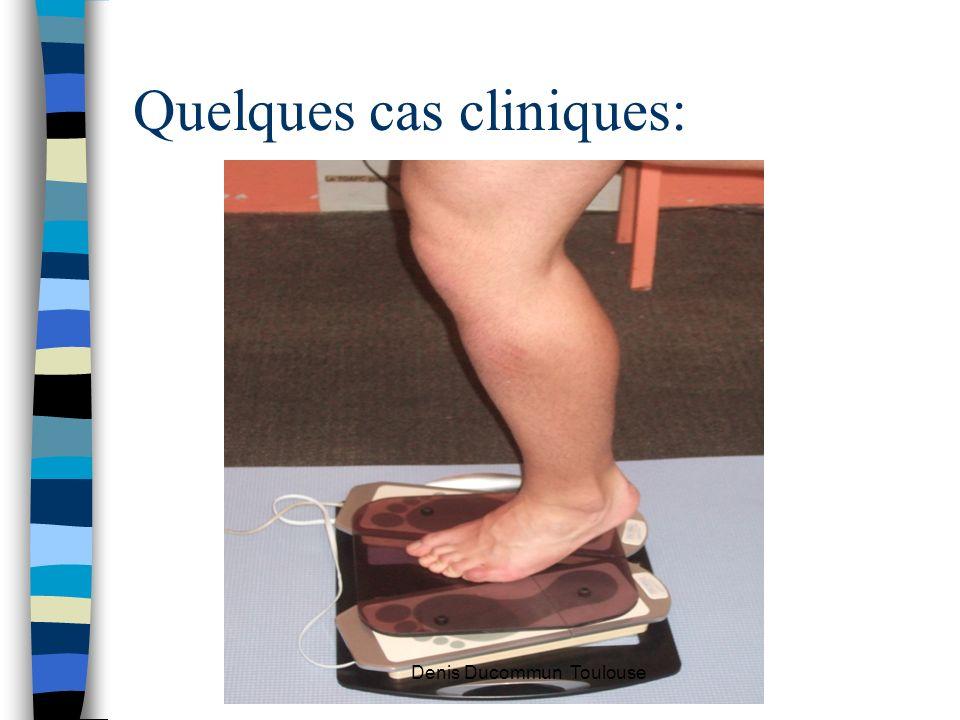 Quelques cas cliniques: Denis Ducommun Toulouse