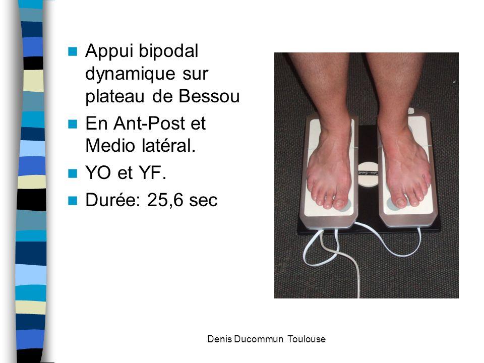 Appui bipodal dynamique sur plateau de Bessou En Ant-Post et Medio latéral. YO et YF. Durée: 25,6 sec Denis Ducommun Toulouse