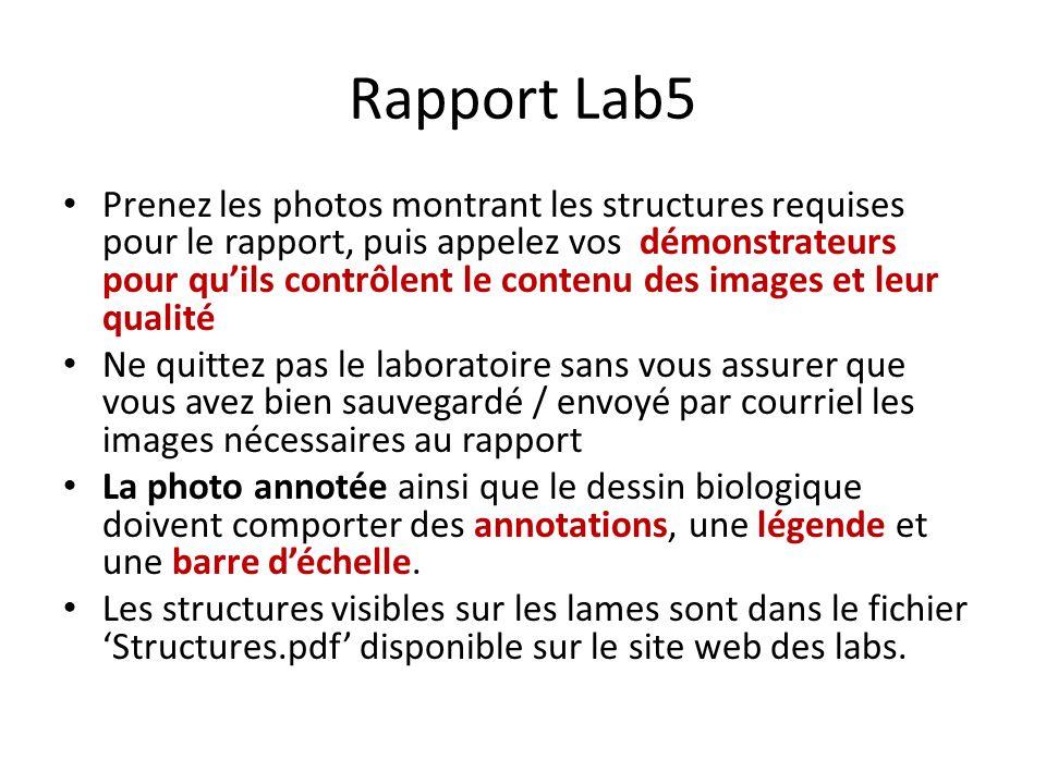 Rapport Lab5 Prenez les photos montrant les structures requises pour le rapport, puis appelez vos démonstrateurs pour quils contrôlent le contenu des