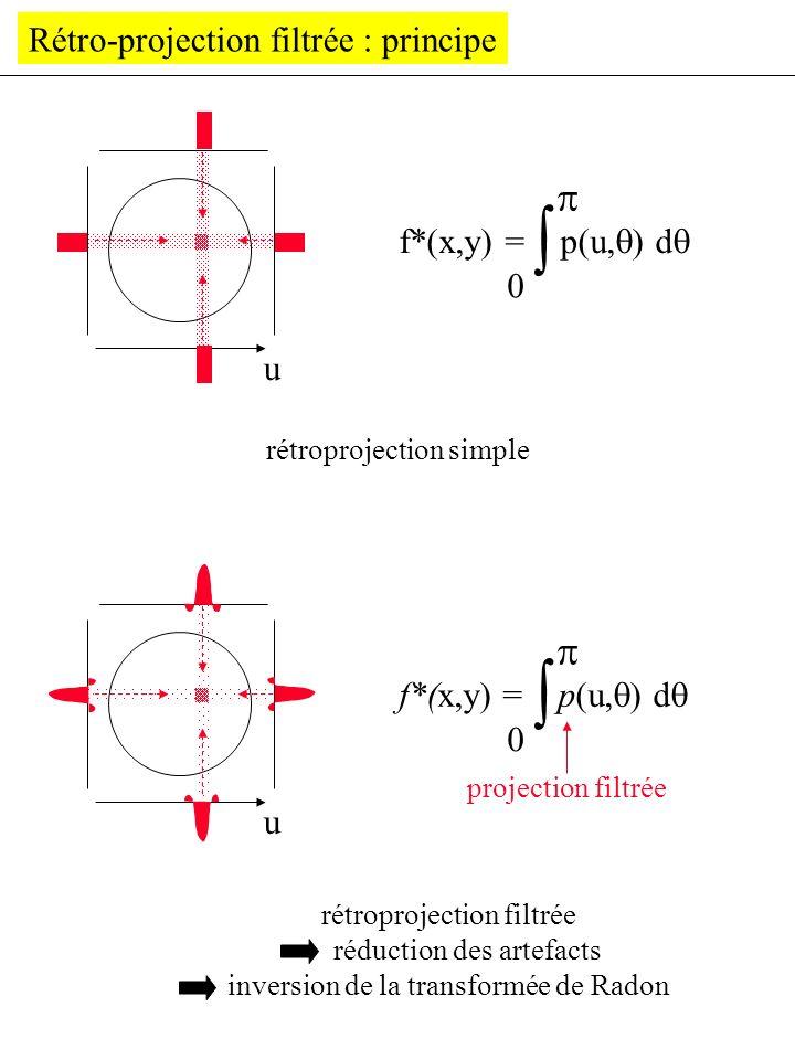 Rétro-projection filtrée : principe rétroprojection simple u f*(x,y) = p(u, ) d rétroprojection filtrée réduction des artefacts inversion de la transf