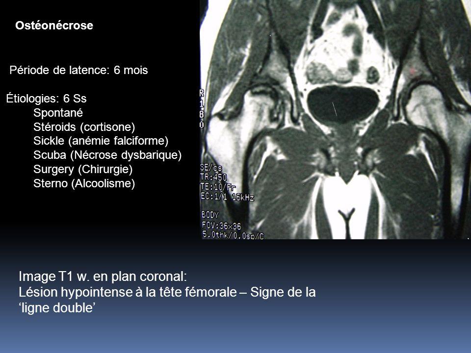 Image T1 w. en plan coronal: Lésion hypointense à la tête fémorale – Signe de la ligne double Ostéonécrose Période de latence: 6 mois Étiologies: 6 Ss