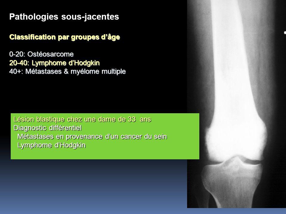 Pathologies sous-jacentes Classification par groupes dâge 0-20: Ostéosarcome 20-40: Lymphome dHodgkin 40+: Métastases & myélome multiple Lésion blasti