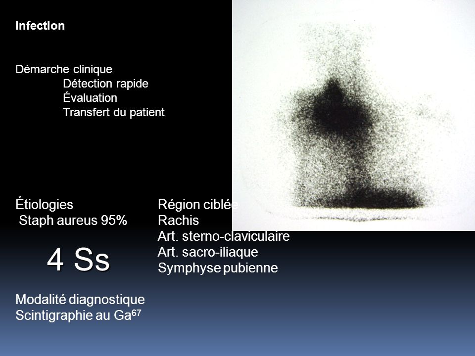 Infection Démarche clinique Détection rapide Évaluation Transfert du patient ÉtiologiesRégion ciblée Staph aureus 95%Rachis Art. sterno-claviculaire A