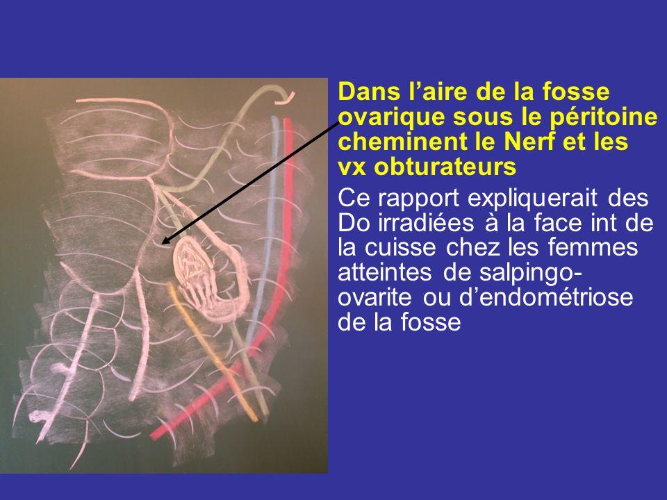 Face latérale Chez la nullipare Répond à la fosse ovarique définie par: En Arr les Vx iliaque interne et luretère En Av lattache pelvienne du ligt large En haut les vx iliaque externe En bas lorigine des art ombilicale et utérine uretère