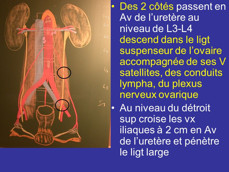 Origine trajet et rapport Naît de la face antérieure de laorte, niveau du DIV L2L3 Quitte laorte surcroise à dte la VCI et à g le Mm grand psoas.