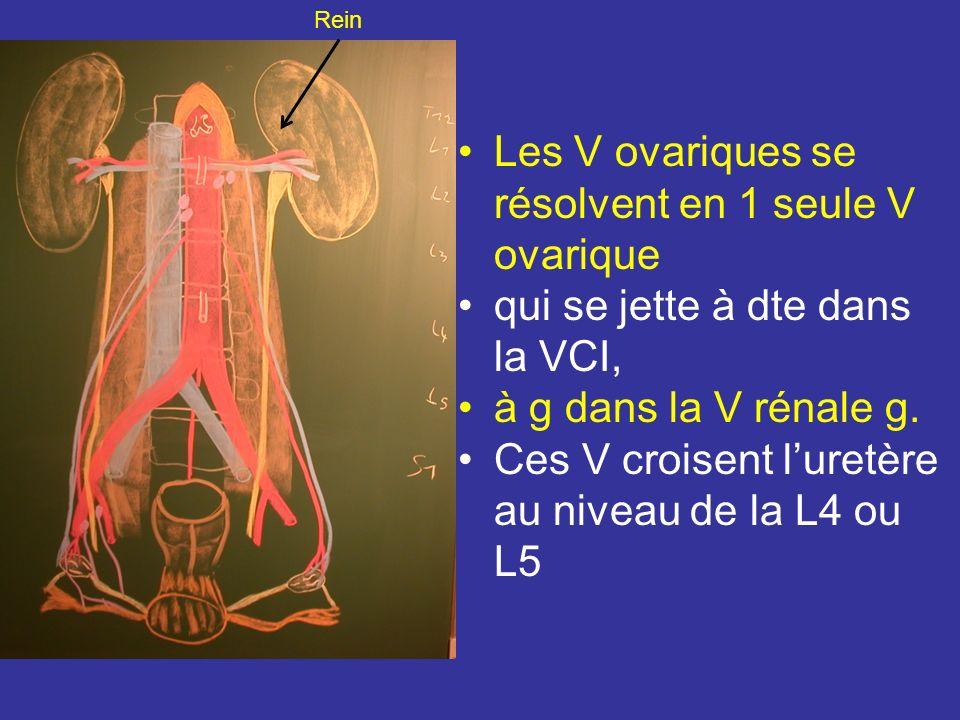 VEINES Les veinules ovariques sinueuses se drainent dans le plexus veineux mésovarique = plexus pampiniforme Leur atteinte variqueuses constituent des varicocèles ovariques Le plexus pampiniforme est drainé principalement par les V ovarique et accessoirement par le plexus utérin.