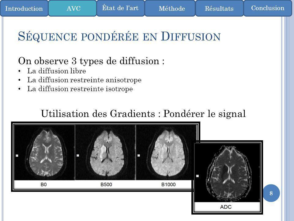 8 S ÉQUENCE PONDÉRÉE EN D IFFUSION On observe 3 types de diffusion : La diffusion libre La diffusion restreinte anisotrope La diffusion restreinte iso