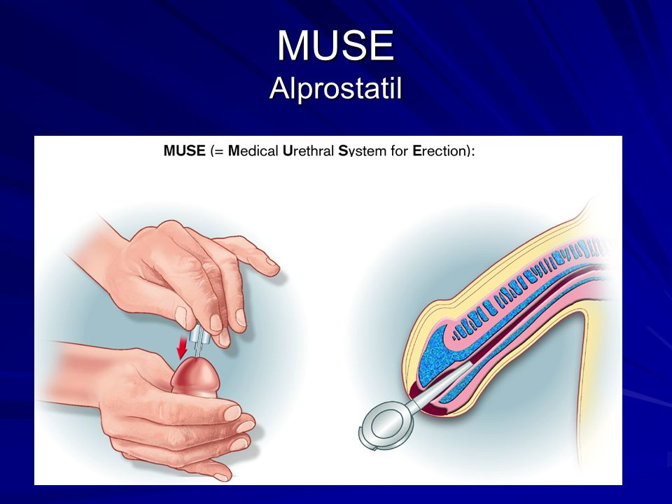 MUSE Alprostatil