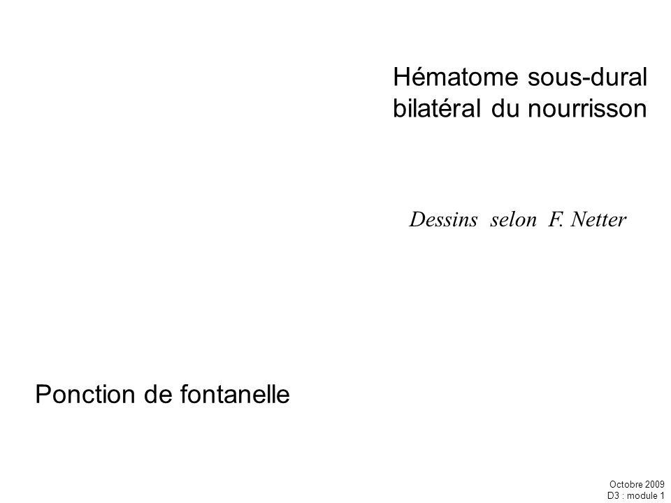 Octobre 2009 D3 : module 1 Dessins selon F. Netter Hématome sous-dural bilatéral du nourrisson Ponction de fontanelle
