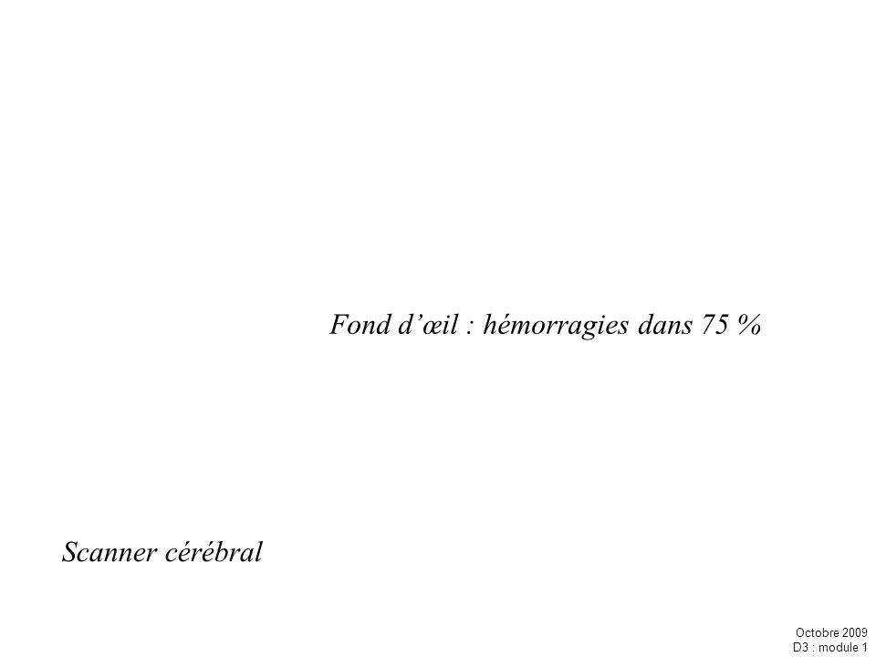 Octobre 2009 D3 : module 1 Scanner cérébral Fond dœil : hémorragies dans 75 %