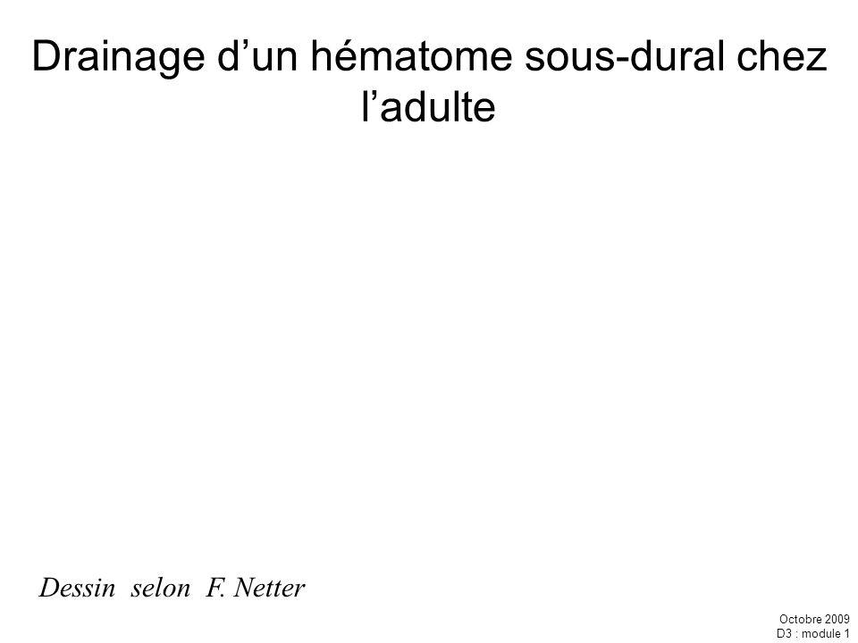 Octobre 2009 D3 : module 1 Dessin selon F. Netter Drainage dun hématome sous-dural chez ladulte