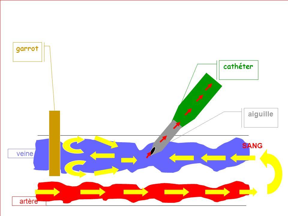 IFSI Ste marguerite - version 03 - PP - 2 année - revu le 27/07/05 garrot cathéter SANG aiguille artère veine