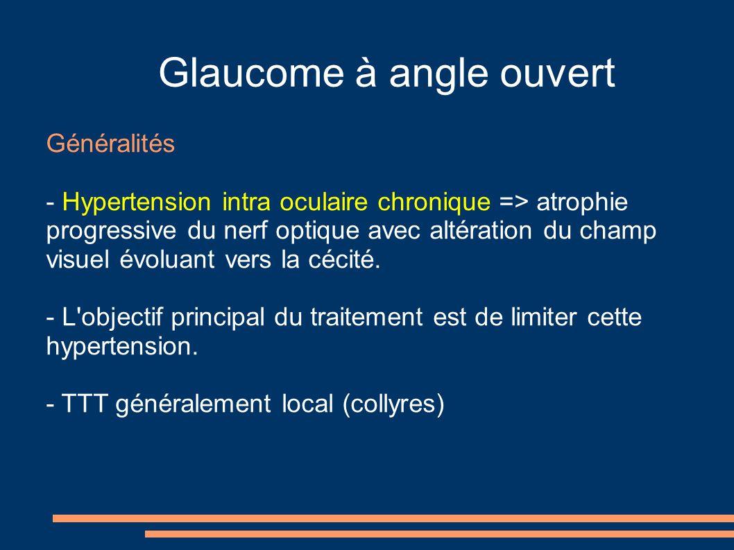 Glaucome à angle ouvert Généralités - Hypertension intra oculaire chronique => atrophie progressive du nerf optique avec altération du champ visuel évoluant vers la cécité.