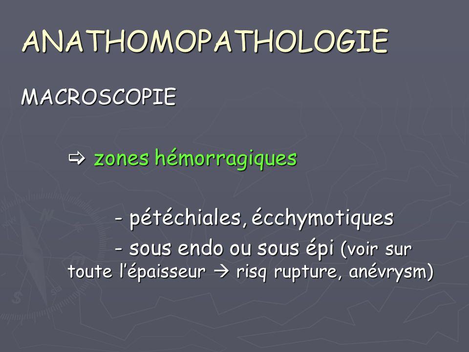 ANATHOMOPATHOLOGIE MACROSCOPIE zones hémorragiques zones hémorragiques - pétéchiales, écchymotiques - sous endo ou sous épi (voir sur toute lépaisseur