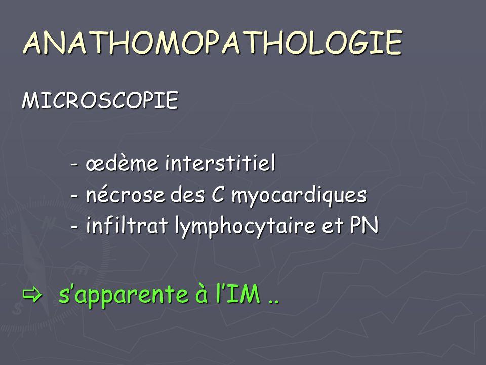 ANATHOMOPATHOLOGIE MICROSCOPIE - œdème interstitiel - nécrose des C myocardiques - infiltrat lymphocytaire et PN sapparente à lIM.. sapparente à lIM..
