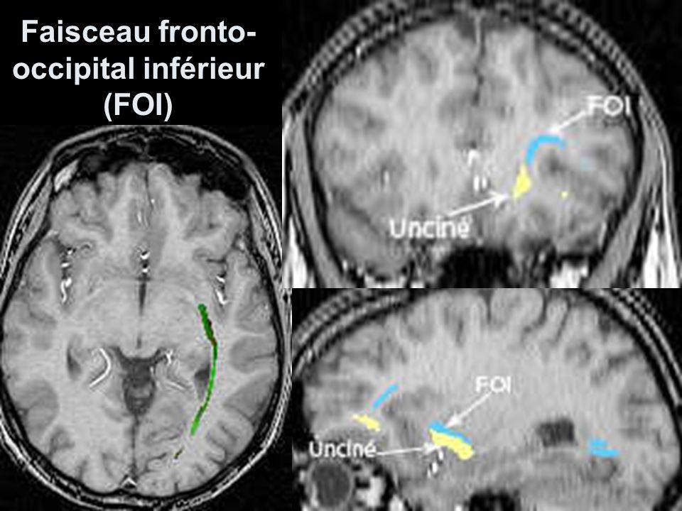 Faisceau fronto- occipital inférieur (FOI)