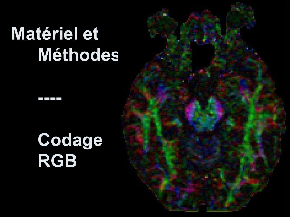 Faisceaux cortico-spinal et cortico-nucléaire