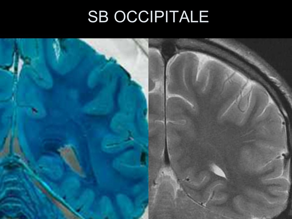 SB OCCIPITALE