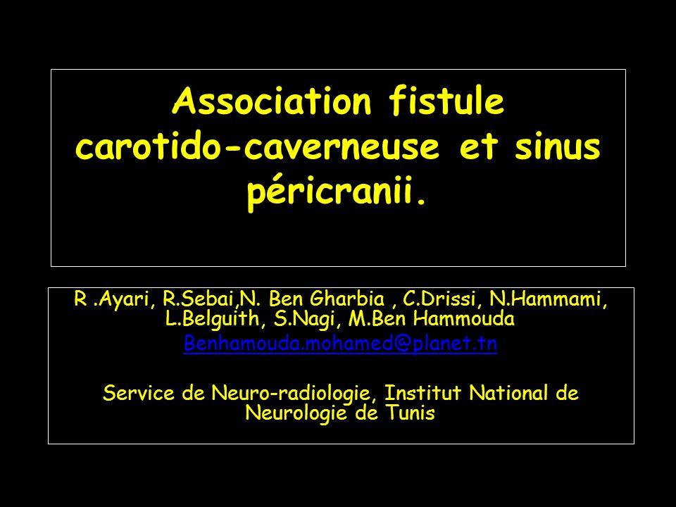 Association fistule carotido-caverneuse et sinus péricranii. R.Ayari, R.Sebai,N. Ben Gharbia, C.Drissi, N.Hammami, L.Belguith, S.Nagi, M.Ben Hammouda
