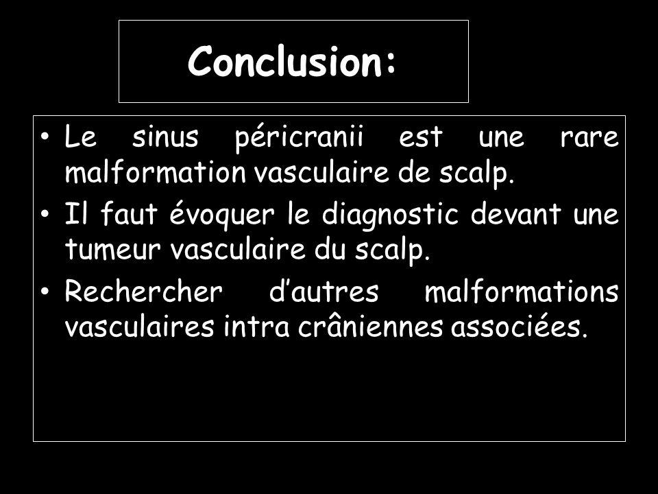 Le sinus péricranii est une rare malformation vasculaire de scalp. Il faut évoquer le diagnostic devant une tumeur vasculaire du scalp. Rechercher dau