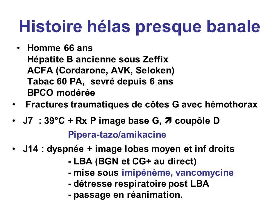 Histoire hélas presque banale Homme 66 ans Hépatite B ancienne sous Zeffix ACFA (Cordarone, AVK, Seloken) Tabac 60 PA, sevré depuis 6 ans BPCO modérée