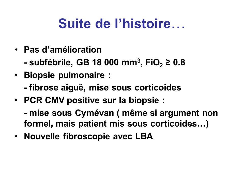 Suite de lhistoire … Pas damélioration - subfébrile, GB 18 000 mm 3, FiO 2 0.8 Biopsie pulmonaire : - fibrose aiguë, mise sous corticoides PCR CMV pos