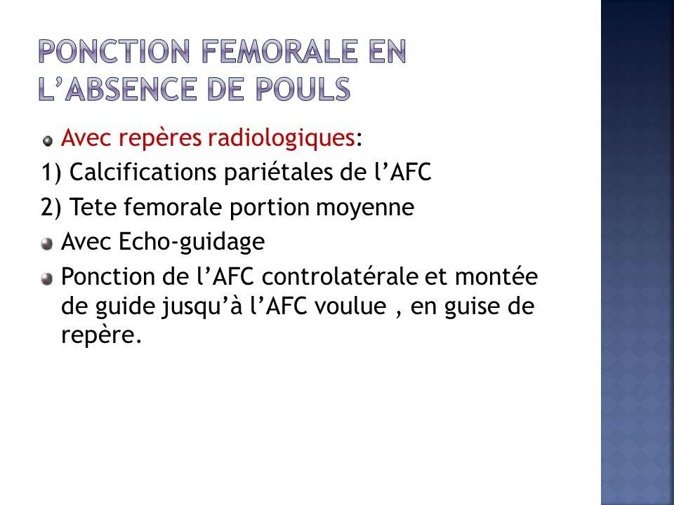 Avec repères radiologiques: 1) Calcifications pariétales de lAFC 2) Tete femorale portion moyenne Avec Echo-guidage Ponction de lAFC controlatérale et