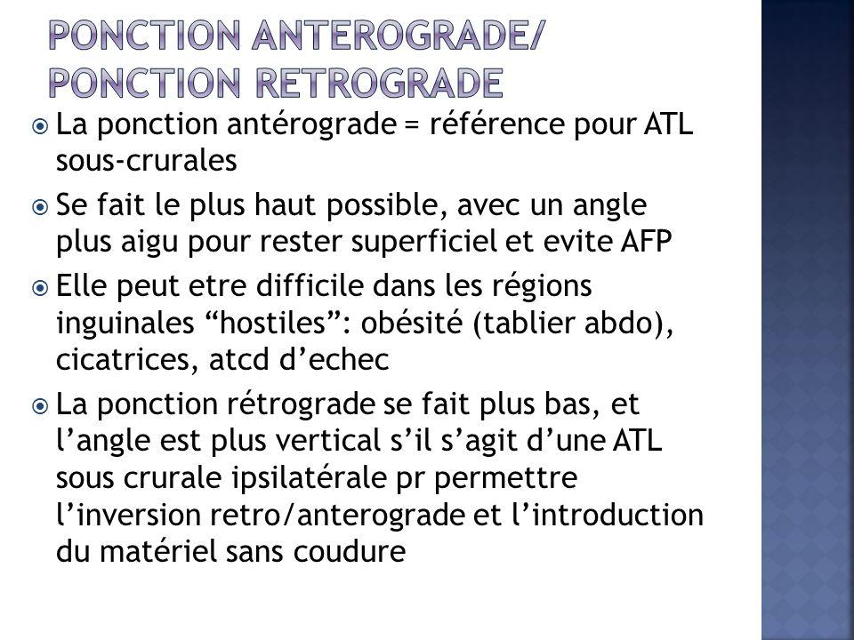 La ponction antérograde = référence pour ATL sous-crurales Se fait le plus haut possible, avec un angle plus aigu pour rester superficiel et evite AFP