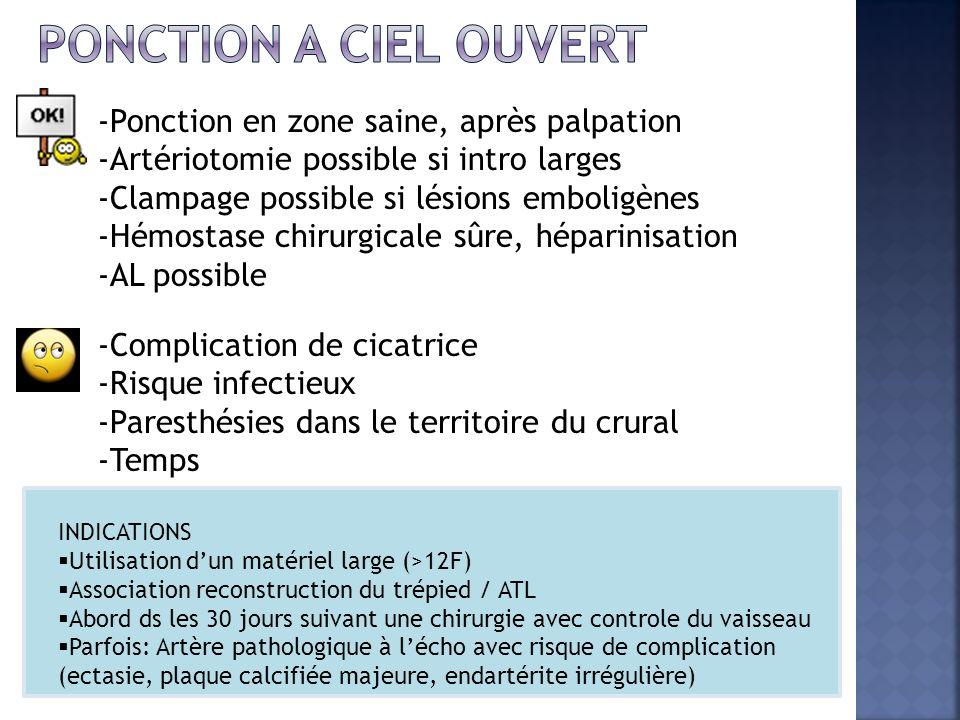 -Ponction en zone saine, après palpation -Artériotomie possible si intro larges -Clampage possible si lésions emboligènes -Hémostase chirurgicale sûre