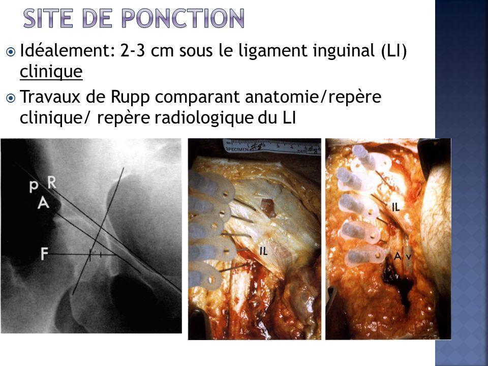 Idéalement: 2-3 cm sous le ligament inguinal (LI) clinique Travaux de Rupp comparant anatomie/repère clinique/ repère radiologique du LI