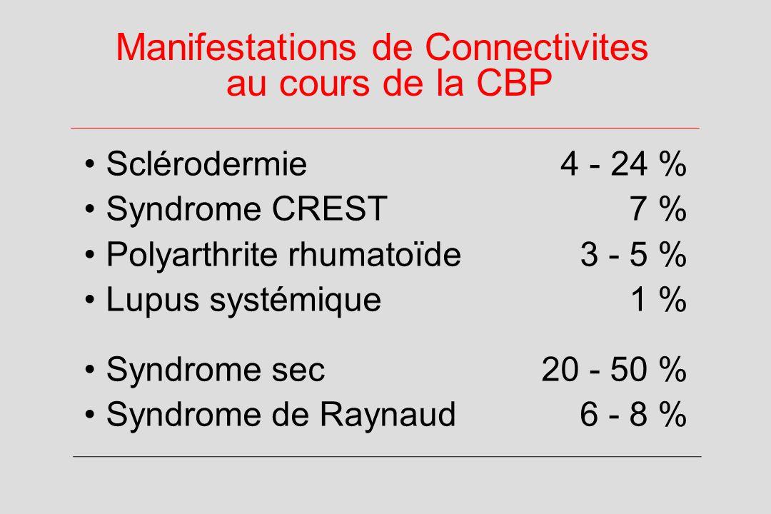 Manifestations de Connectivites au cours de la CBP Sclérodermie 4 - 24 % Syndrome CREST 7 % Polyarthrite rhumatoïde 3 - 5 % Lupus systémique 1 % Syndrome sec20 - 50 % Syndrome de Raynaud 6 - 8 %