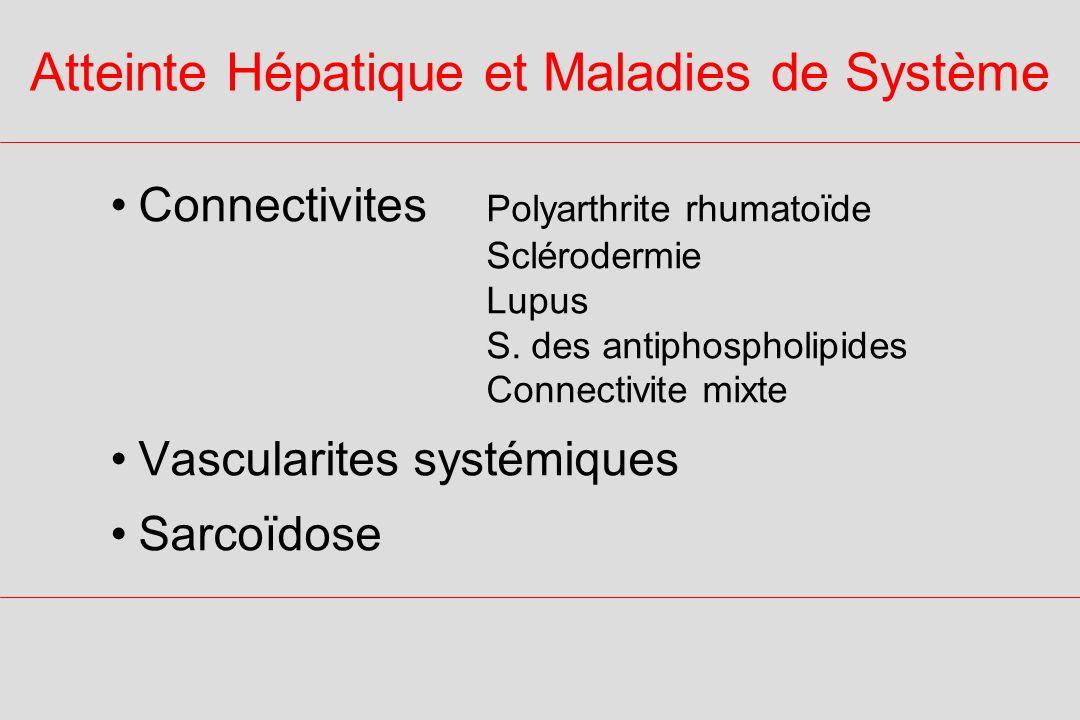 Atteintes extrahépatiques au cours de la CSP Colite inflammatoire65% Atteinte extra-intestinale25% Lupus systémique Polyarthrite rhumatoïde Syndrome de Sjögren Sclérodermie rares