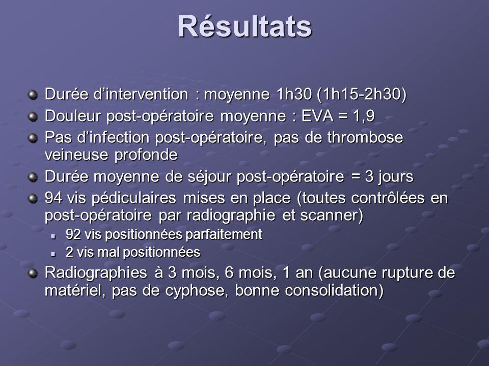 Résultats Durée dintervention : moyenne 1h30 (1h15-2h30) Douleur post-opératoire moyenne : EVA = 1,9 Pas dinfection post-opératoire, pas de thrombose