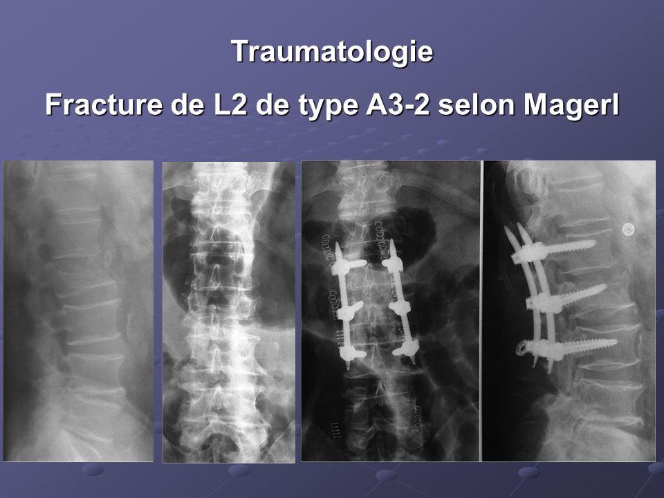 Traumatologie Fracture de L2 de type A3-2 selon Magerl