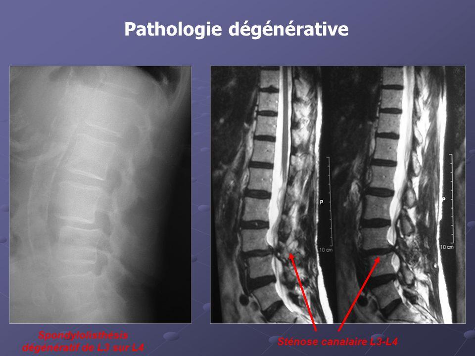 Pathologie dégénérative Spondylolisthésis dégénératif de L3 sur L4 Sténose canalaire L3-L4