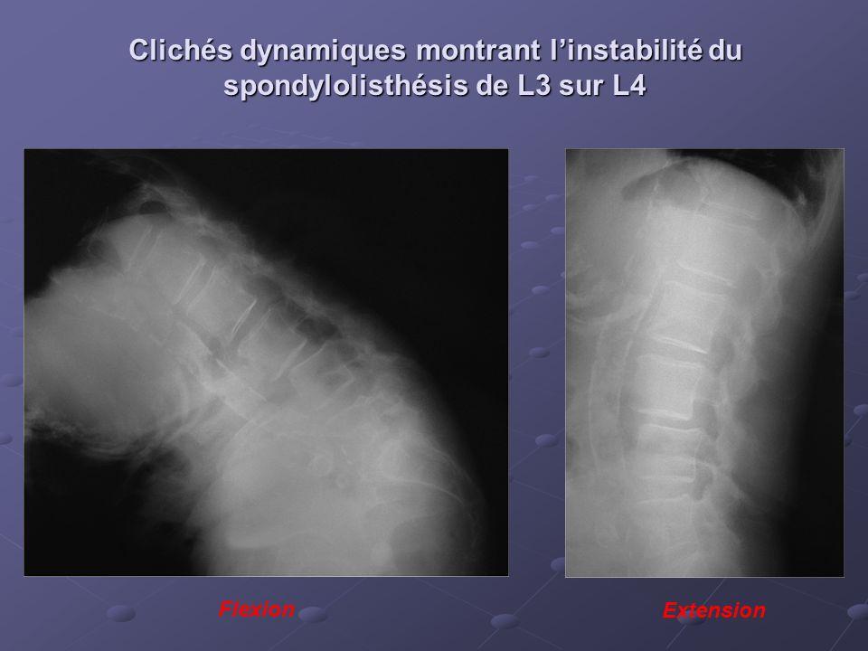 Clichés dynamiques montrant linstabilité du spondylolisthésis de L3 sur L4 Extension Flexion