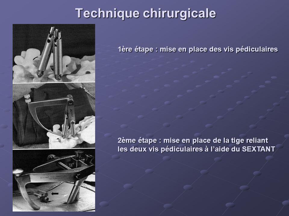 Technique chirurgicale 1ère étape : mise en place des vis pédiculaires 2ème étape : mise en place de la tige reliant les deux vis pédiculaires à laide