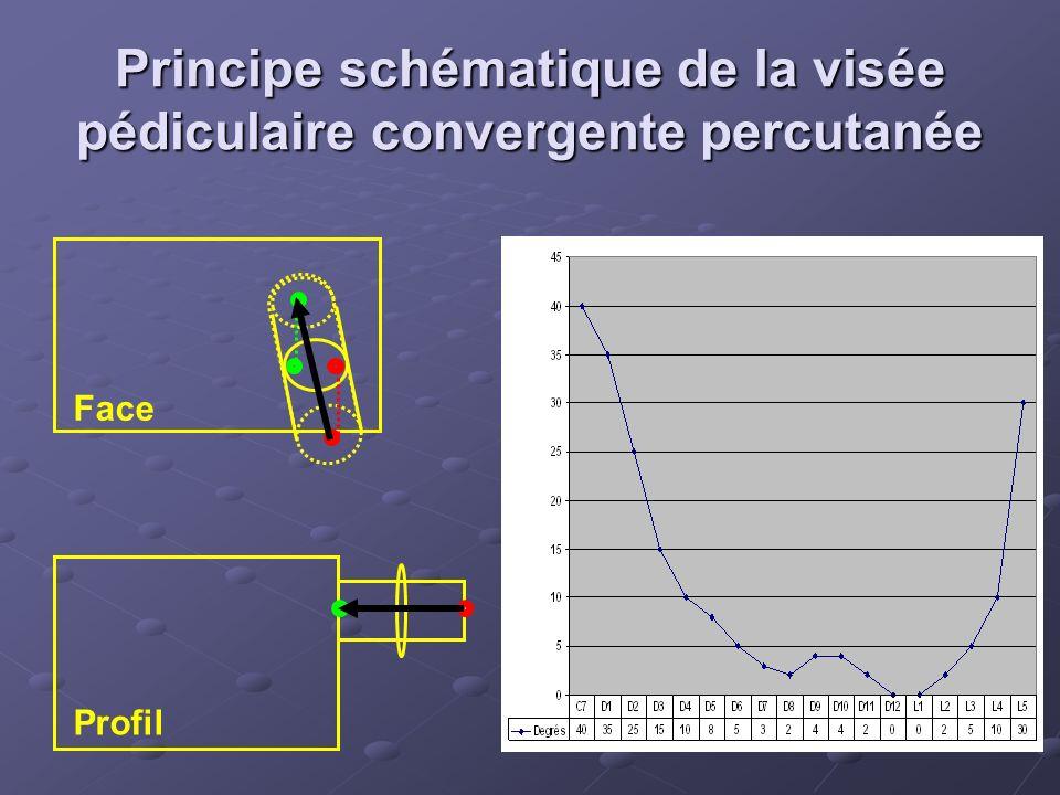 Principe schématique de la visée pédiculaire convergente percutanée Face Profil