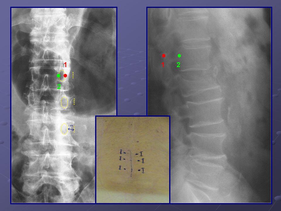 Scanner post-opératoire montrant le recalibrage canalaire L3-L4