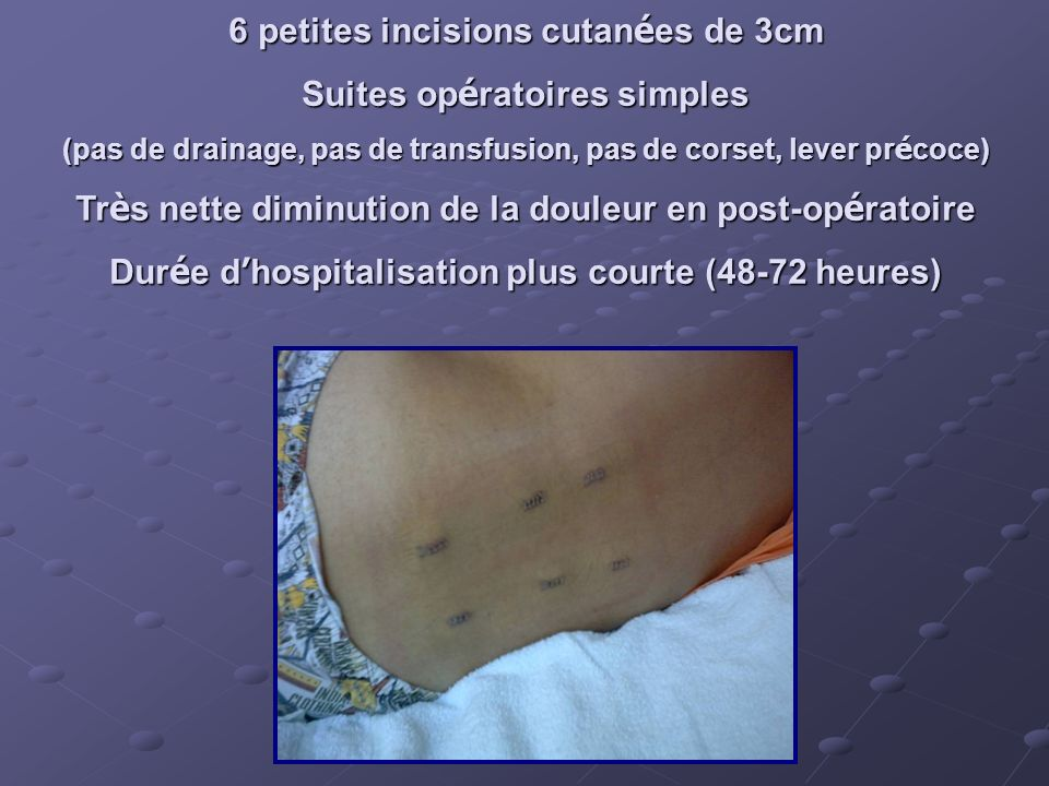 6 petites incisions cutan é es de 3cm Suites op é ratoires simples (pas de drainage, pas de transfusion, pas de corset, lever pr é coce) Tr è s nette