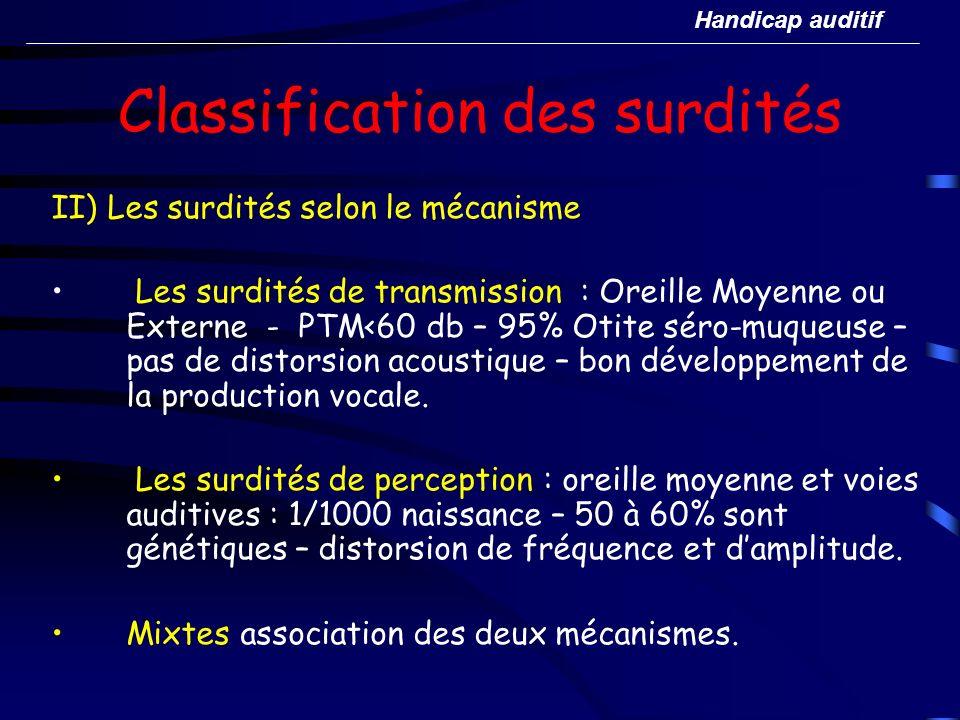 Classification des surdités II) Les surdités selon le mécanisme Les surdités de transmission : Oreille Moyenne ou Externe - PTM<60 db – 95% Otite séro