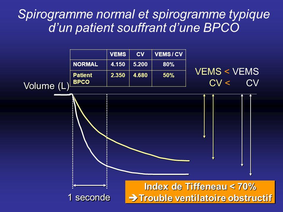 Spirogramme normal et spirogramme typique dun patient souffrant dune BPCO VEMS < VEMS CV < CV 1 seconde Volume (L) VEMSCVVEMS / CV NORMAL4.1505.20080%