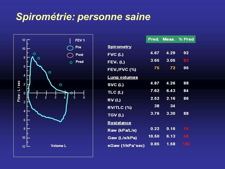 Volume L Flow : L / sec FEV 1 Pre Post Pred Spirométrie: personne saine 10 8 12 6 4 2 0 2 4 6 8 10 12 123456