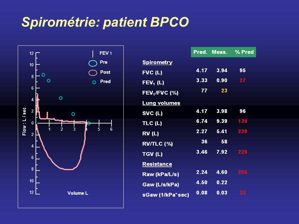 10 8 12 6 4 2 0 2 4 6 8 10 12 123564 Flow : L / sec Volume L FEV 1 Pre Post Pred Spirométrie: patient BPCO