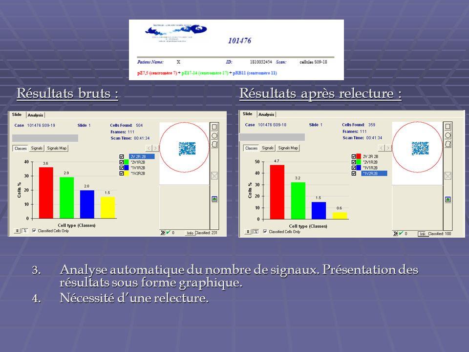 3. Analyse automatique du nombre de signaux. Présentation des résultats sous forme graphique. 4. Nécessité dune relecture. Résultats bruts : Résultats