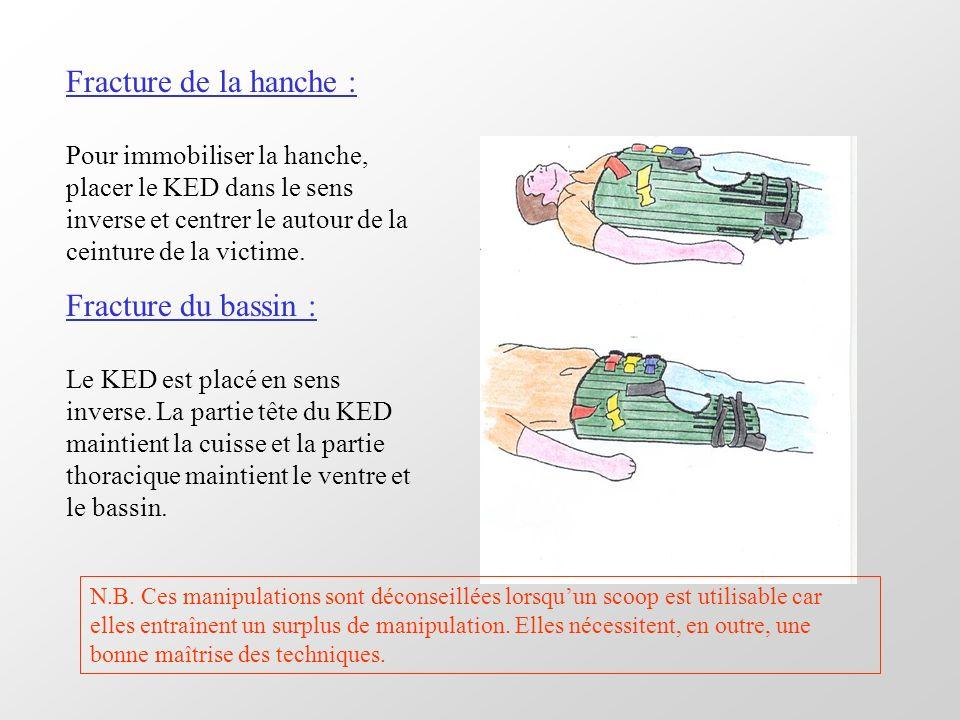 Fracture de la hanche : Pour immobiliser la hanche, placer le KED dans le sens inverse et centrer le autour de la ceinture de la victime. Fracture du