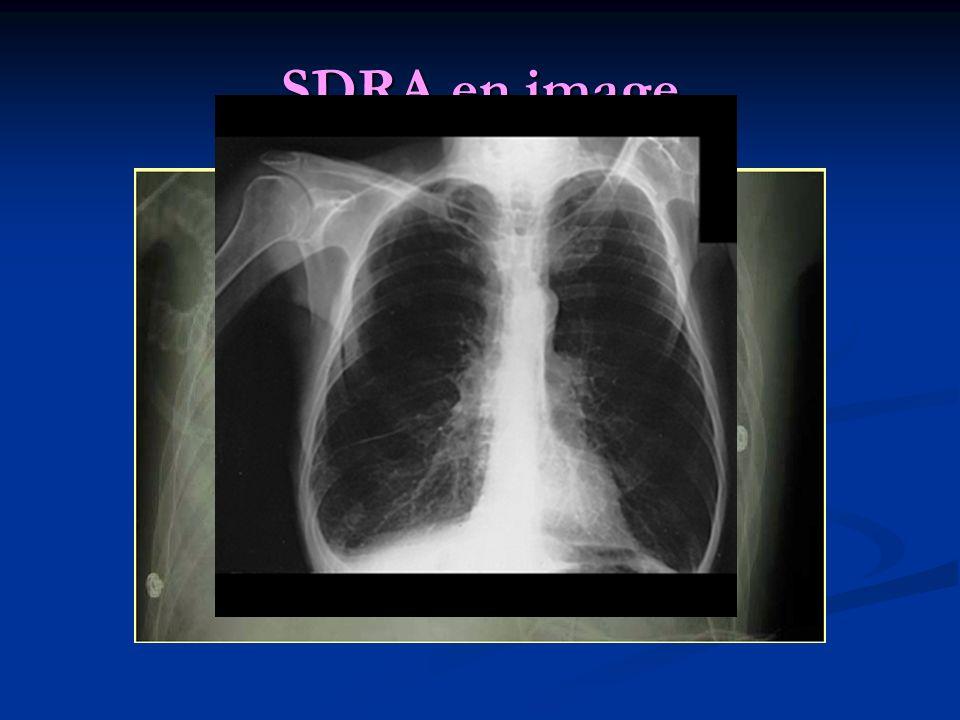 SDRA en image
