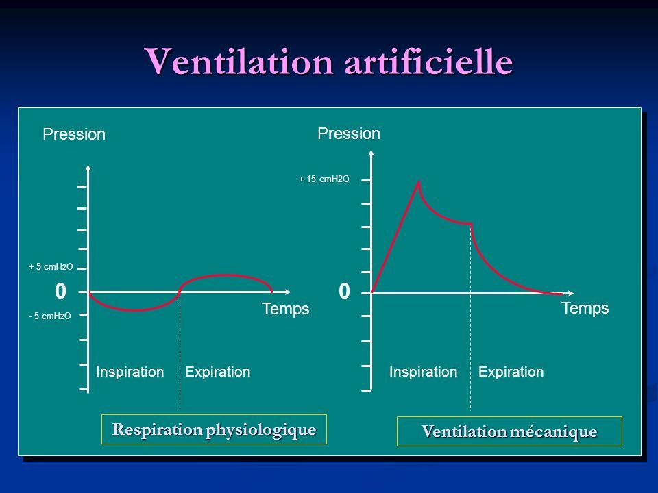 Ventilation artificielle 00 Pression Temps InspirationExpirationInspirationExpiration Respiration physiologique Ventilation mécanique - 5 cmH 2 O + 5 cmH 2 O + 15 cmH2O