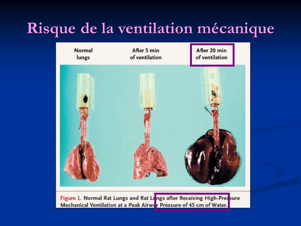 Risque de la ventilation mécanique