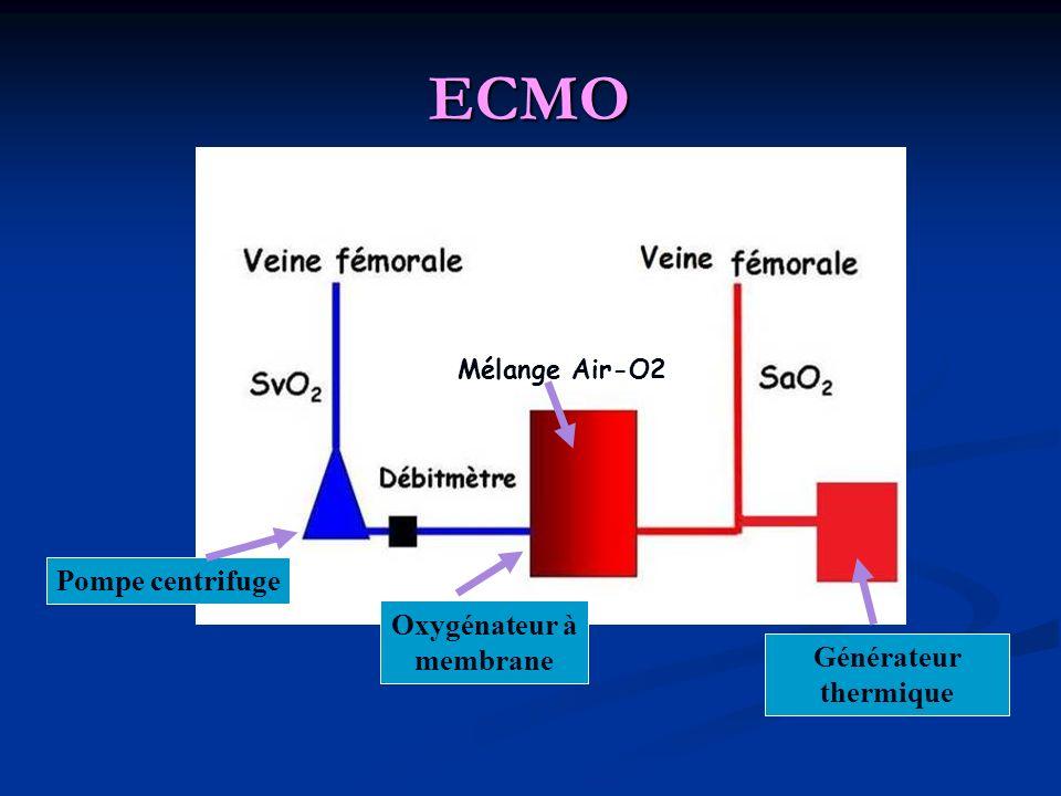 ECMO Pompe centrifuge Oxygénateur à membrane Mélange Air-O2 Générateur thermique